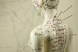mapping out the acupuncture treatment points