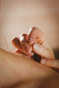 needles used for acupuncture treatment