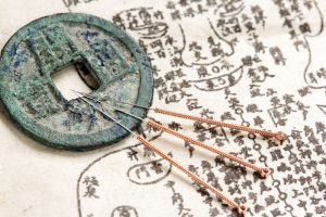 tradiional chinese medicine and acupuncture